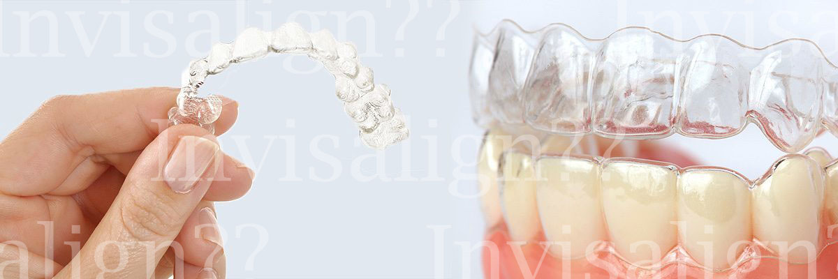 Los Angeles Does Invisalign® Really Work?