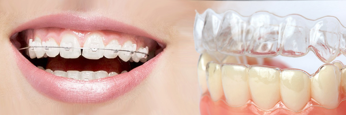 Los Angeles Which is Better Invisalign or Braces